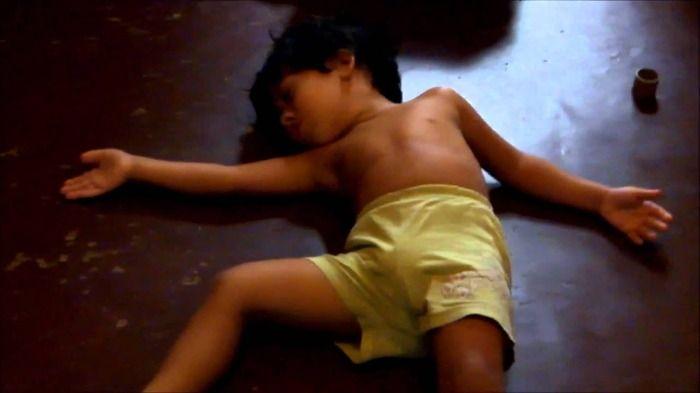 Jovem sofre AVC após bater 1 bi de punhetas